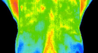 breast-Thermography