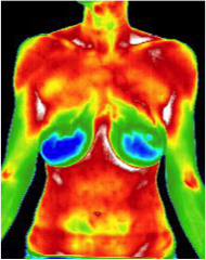 about thermography